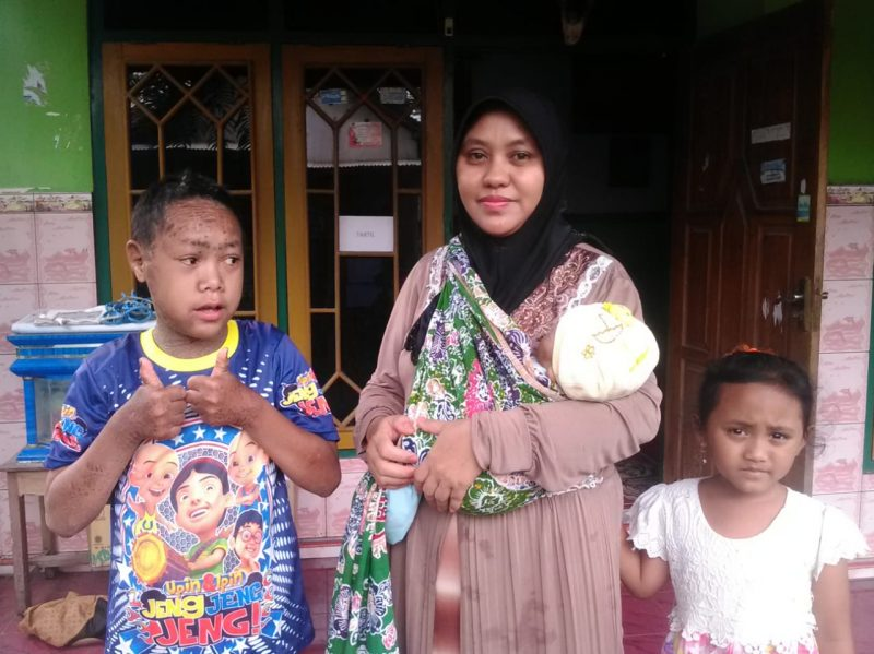 Rochim Anak Bersisik Kasembon Sekolah di Madrasah Ibtidaiyah Hidayatus Sibyan Bocok